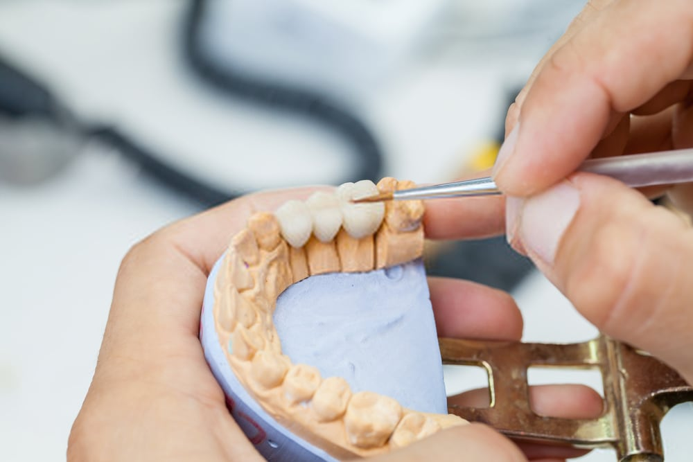 New denture materials like real teeth are expected to replace porcelain teeth