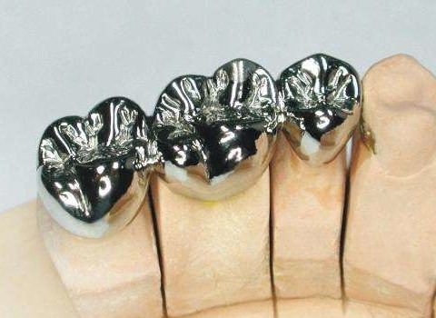 Full Metal Crown