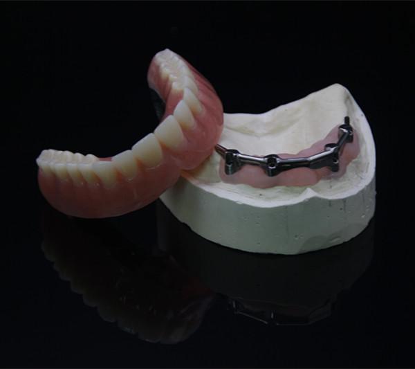 Implant Bar